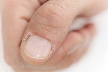 9c366efc776 Popraskaná nehtová kůžička je nevzhledná a může být bolestivá  potřebuje  SOS péči